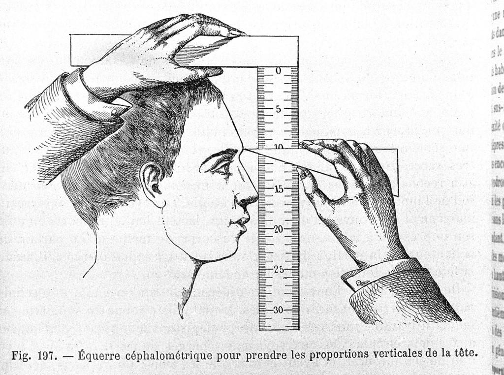 kraniometriaa